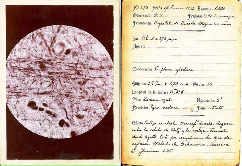 Ficha histológica 1911